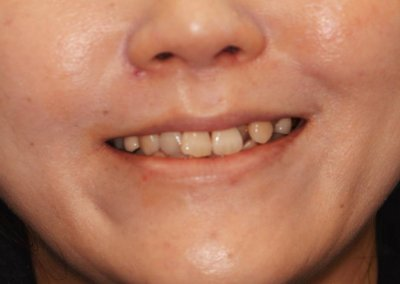 Before Invisalign Braces Treatment