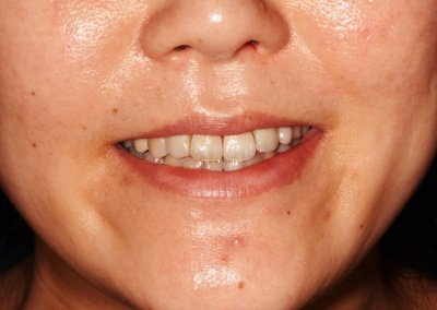 After Invisalign Braces Treatment