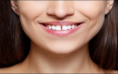 Remove Gaps Between Your Teeth With Help From Your Cosmetic Dentist In Bedford