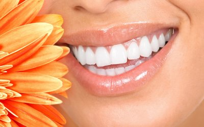 Teeth Whitening: Facts and Myths