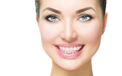 Know the available teeth straightening techniques in 2018